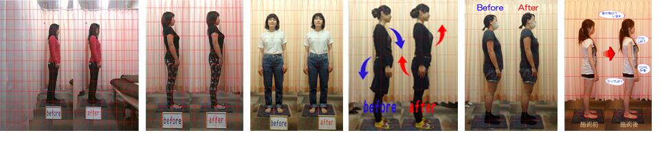 画像分析による整体前後の写真